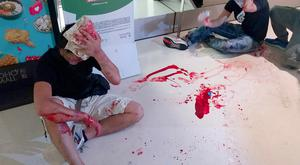 Pro-democracy protesters are left bleeding after the savage attack. Photo: Apple Daily via AP