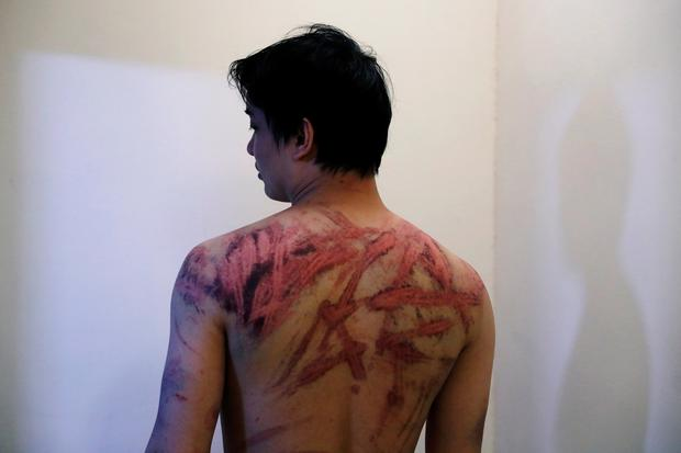 A victim reveals his wounds. Photo: Reuters/Tyrone Siu