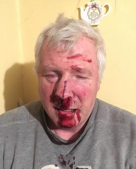 Tom ODonnell (60) was moving his cows across a public road on the outskirts of Kilmallock, Co. Limerick when he was punched and knocked unconscious and was left in a pool of blood after he was viciously assaulted in the latest shocking incident of rural crime in the county. Photograph Press 22