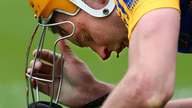 Tipperary's Seamus Callanan goes down with an injury at the Gaelic Grounds in Limerick yesterday