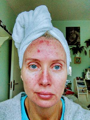 Mum Margaret Murphy is undergoing treatment after discovering pre-cancerous cells following years of sun damage