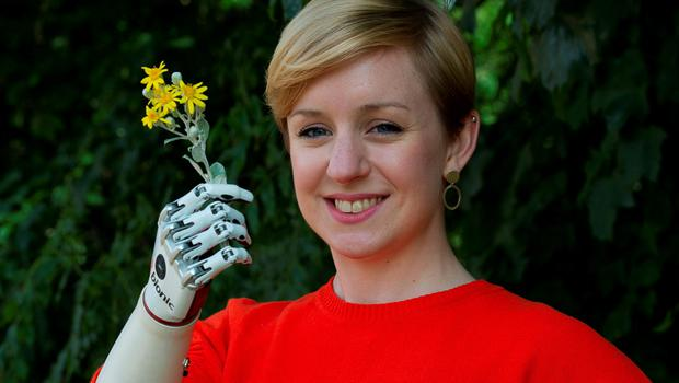 Nicky Ashwell, the UK's first patient to receive a lifelike bionic hand, holds flowers at the offices of the London Prosthetic Centre, Kingston, West London. PRESS ASSOCIATION Photo. Picture date: Tuesday June 16, 2015. Ms Ashwell, 29, from London, can now carry out tasks with both hands for the first time, but said it is the little things she can now do that surprise her the most, such as being able to carry her purse at the same time as holding her boyfriend's hand. See PA story HEALTH Hand. Photo credit should read: Laura Lean/PA Wire
