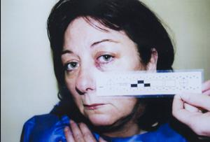 Injuries suffered by Mary Lynch