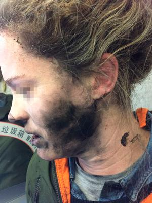 Burns suffered by passenger. Picture Australian Transport Safety Bureau (ATSB)