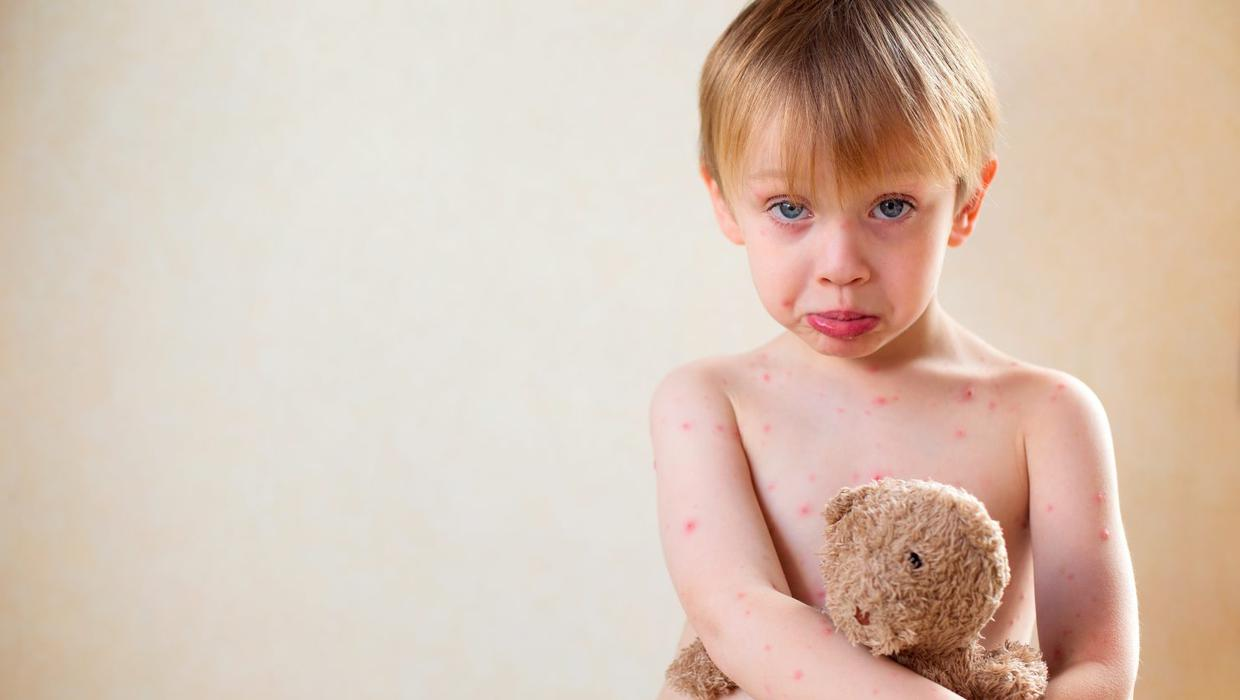 chicken pox while on steroids