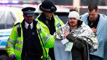 A member of the public is treated by emergency services near Westminster Bridge and the Houses of Parliament on March 22, 2017 in London, England (Photo by Carl Court/Getty Images)