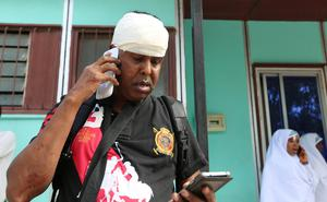 Somali photojournalist Faarah Abdi Warsame talks on his mobile phone after he was injured in a secondary explosion in front of Dayah hotel in Somalia's capital Mogadishu, January 25, 2017. REUTERS/Feisal Omar