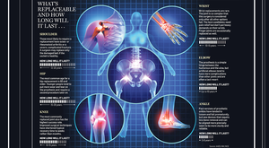 Joint replacements - what's replaceable and how long they last