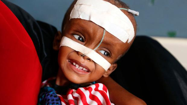 A displaced, malnourished child fitted with a gastric tube is seen inside a ward dedicated for diarrhoea patients at the Banadir hospital in Somalia's capital Mogadishu. Photo: Reuters