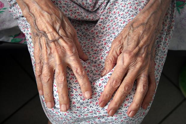 Cracks are appearing and nursing homes are the fault line