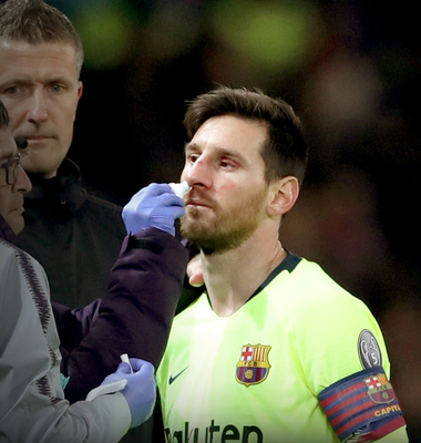 Barcelona's Lionel Messi receives medical attention after sustaining a blood injury in the first leg quarter-final against Manchester United at Old Trafford last night
