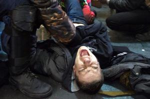 An injured man reacts as he is attended by anti-government protesters during clashes with riot police