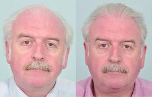 Marty Whelan revealed he had a hair transplant last year