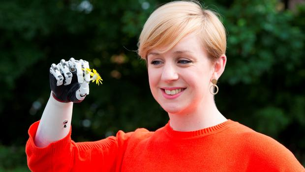 Nicky Ashwell, the UK's first patient to receive a lifelike bionic hand, poses for portraits at the offices of the London Prosthetic Centre, Kingston, West London. PRESS ASSOCIATION Photo. Picture date: Tuesday June 16, 2015. Ms Ashwell, 29, from London, can now carry out tasks with both hands for the first time, but said it is the little things she can now do that surprise her the most, such as being able to carry her purse at the same time as holding her boyfriend's hand. See PA story HEALTH Hand. Photo credit should read: Laura Lean/PA Wire