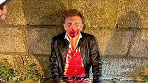Jack Woolley after being attacked in Dublin city centre