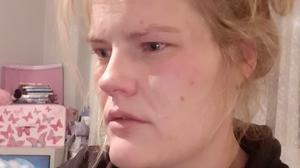 """Emma Hanrahan after the attack on Friday night. """"When you are in that situation, it's true what they say, your life really does flash before your eyes,"""" she said."""