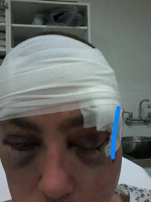 Paul Healy sustained serious head and facial injuries in the attack Photo: Neil Prendeville show on Cork's RedFM