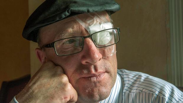 Michael Healy-Rae: eye operation