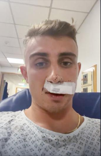 Jack Woolley in St James's Hospital Dublin after being attacked