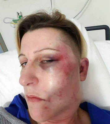 'Groomed': Susan Walmsley after the assault