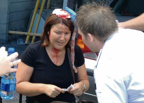 A woman who was struck on the head by a falling mallet is treated for her injuries