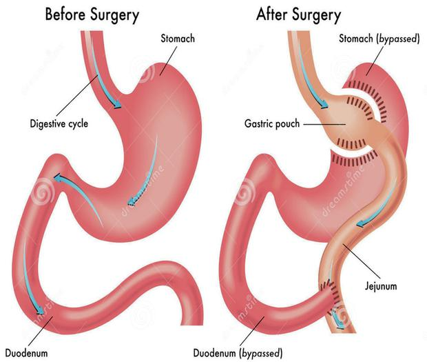 Diagram of the bypassing of the stomach that takes place during gastric bypass surgery