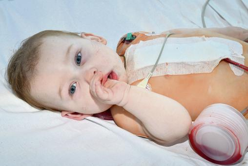 Life-saving cardiac operations are taking place on children