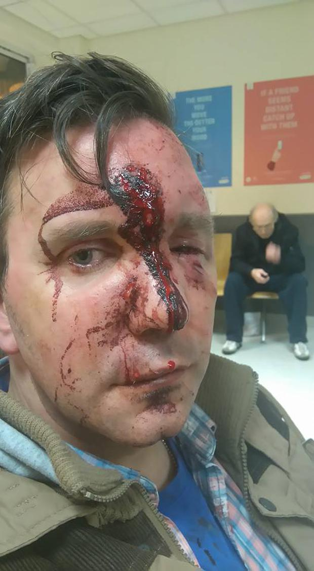 Simon Cleary was on his way home from the city centre when he was attacked at the Luas stop