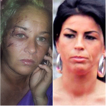 Mary McCarthy (left) was left with facial injuries after the attack by Ciara Killeen (right)