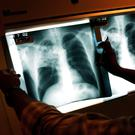 Tuberculosis mainly affects the lungs – although it can reach other organs too. Stock picture
