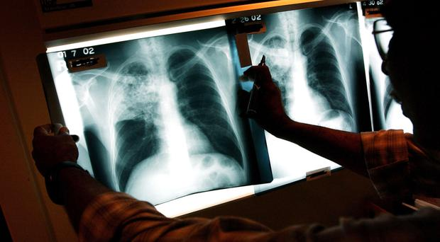 Q&A: What is TB and how does it spread?