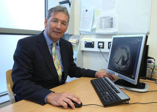 Dr. David Fennelly wants more cervical cancer sufferers to access pembrolizumab following the experience of Vicky Phelan. Photo: Damien Eagers