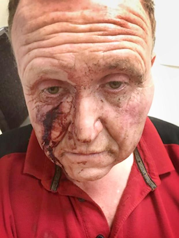 Vicious: Patrick Walsh was left bloodied and unconscious after the attack at his farm in Lispopple, Co Dublin
