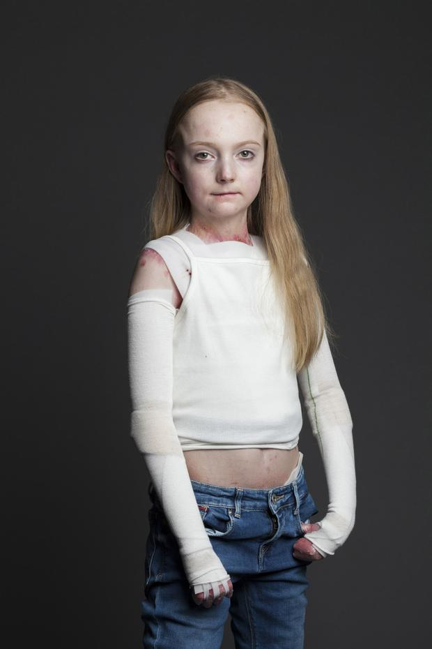 Brave: Claudia Scanlon (14) has bandages over 80pc of her body due to her EB disease
