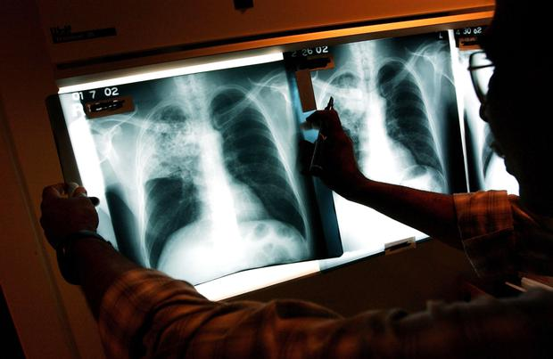The latest Irish trends in TB come as a new study published today in the 'Lancet' medical journal shows TB remains the leading infectious killer of our time. Stock picture