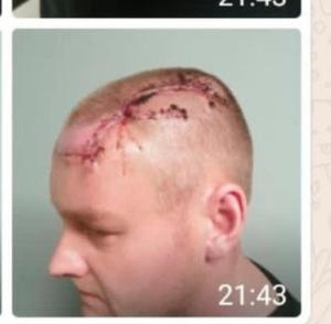 Photos of gun attack victim Paul Fleming's injuries were passed to the Belfast Telegraph.
