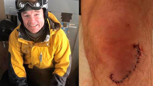 Brian O'Driscoll shows off his skiing injury and the stitches in his knee