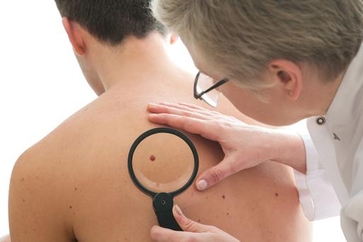 Many moles on men's backs indicate a high risk