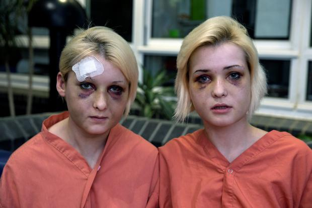 Sisters Nicole (left) and Amy Rice from Tallaght, who suffered serious facial injuries after being beaten by two men at an apartment in Newbridge, Co Kildare