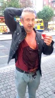 Dafydd Hughes after attack on O'Connell Street