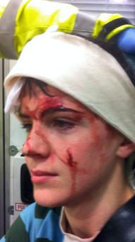 Charles Kenny on his way to hospital after getting a stud in the head