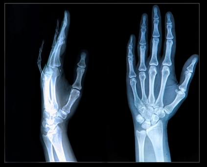 Finger joints - medication can reduce joint inflammation