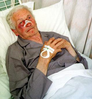 Peter Logan in his hospital bed after his brother was beaten to death in a raid on their Co Meath home in 2000.