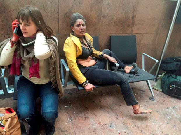 Survivors: Two wounded women pictured in Brussels airport after Tuesday's attack.