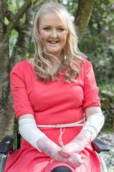 Emma Fogarty was born with the skin condition EB, also known as 'butterfly skin'. Photo: Philip Lang.