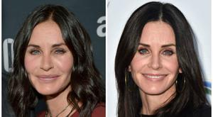 Courtney Cox with fillers (left) and without (right)