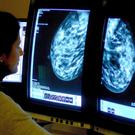 The number of women diagnosed with breast cancer has reached record levels