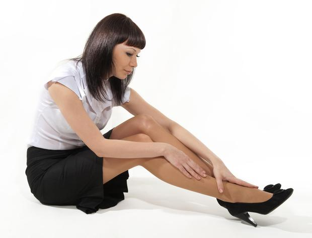 Varicose veins and spider veins are more common in women than men