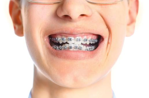 Over 18,000 teens on waiting lists to see orthodontist