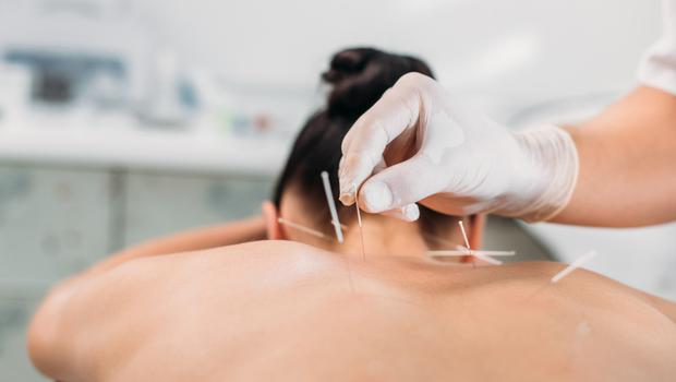 There are at least eight different styles and techniques taught in accredited schools making it difficult to define a 'standard' and know whether the results of a trial of a single type of acupuncture can be generalised to other types